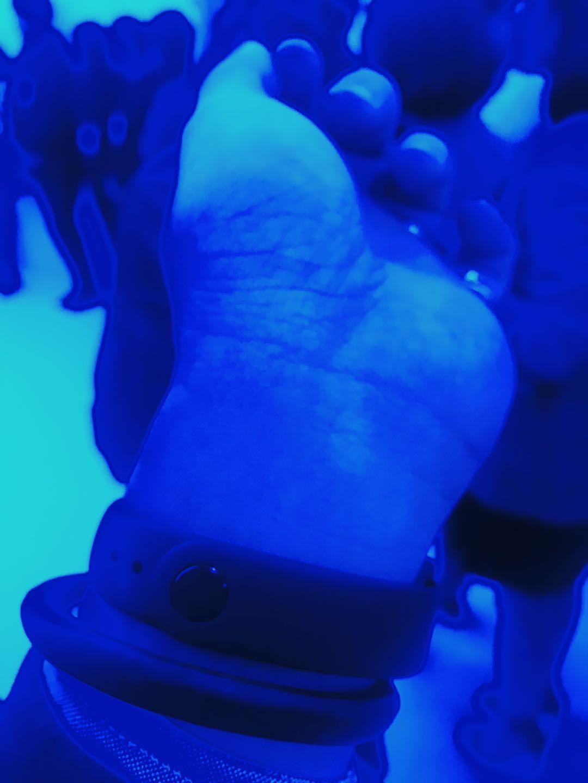 現場藍光下的靜脈